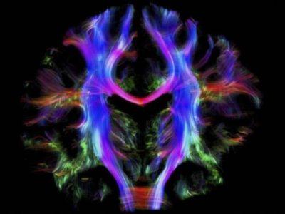 cover-r4x3w1000-58176ad3b2206-cerveau-voies-neuronales